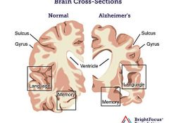 norman-brain-vs-alzheimers-brain