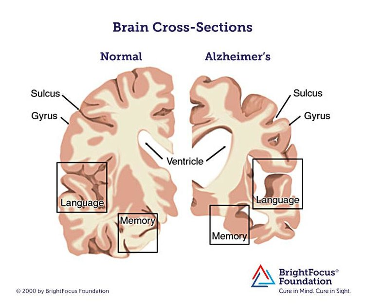 alzheimers-early-diagnosis-prevention-and-drug-treatment