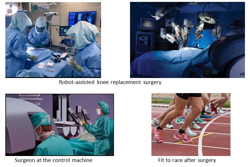 assisted-robotic-surgery-in-total-knee-replacements